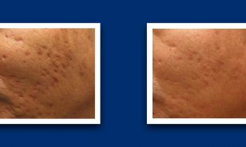 Acne scar removal before and after collage
