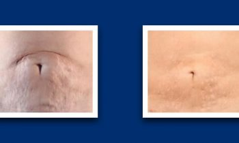 Strech marks removal collage belly