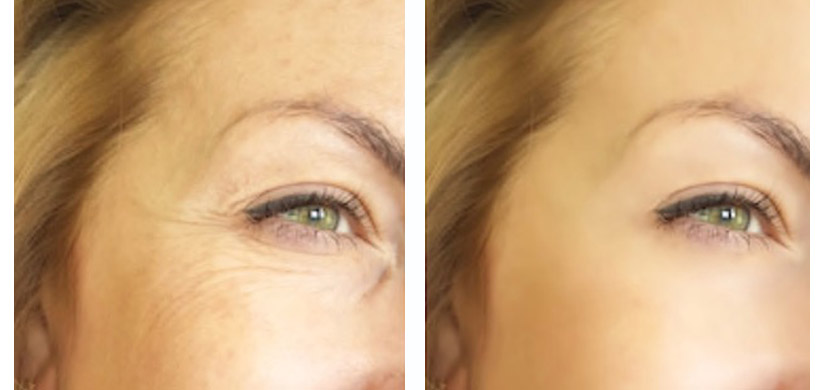 Botox in Exeter, wrinkle reduction