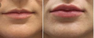 Lips treatment Exeter