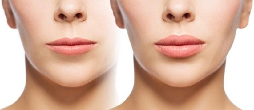 Dermal Fillers in Exeter