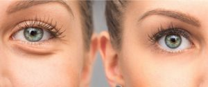 Eye bags around eyes treatment Exeter