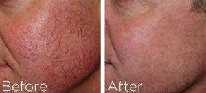 Facial veins treatment Exeter