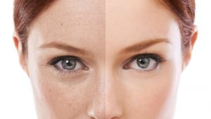Fine lines and wrinkles treatment Exeter