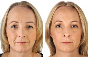 Nasolabial folds treatment Exeter