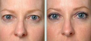 dropping eyelids treatment Exeter