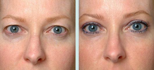 dropping eyelids treatment Exeter