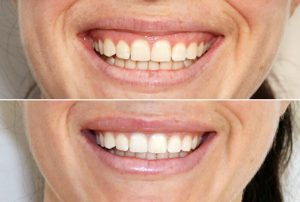 gummy smile treatment exeter