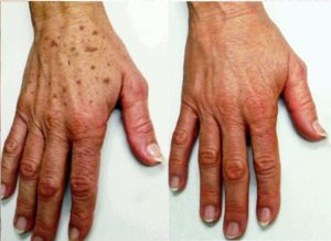Hands rejuvenation treatment Exeter