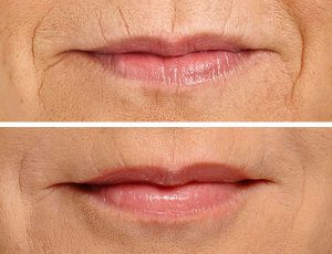 perioral lines treatment Exeter