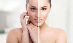 skin pigmentation treatment Exeter
