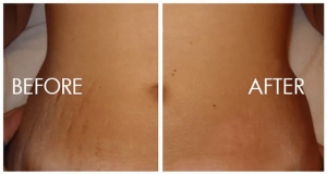stretch marks removal Exeter 2